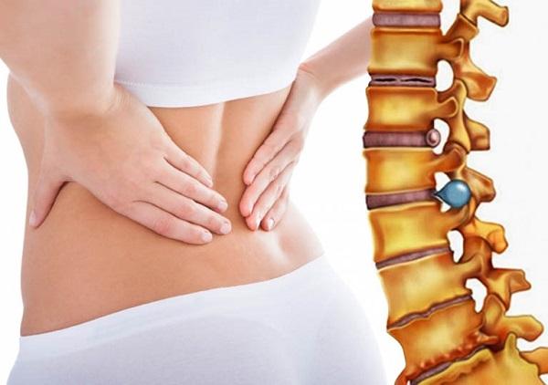 Phương pháp Chiropractic điều trị bệnh thoát vị đĩa đệm nhanh chóng